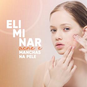 Eliminar acne e manchas na pele